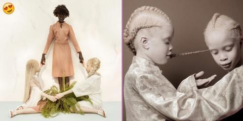 Ces petites jumelles albinos révolutionnent l...