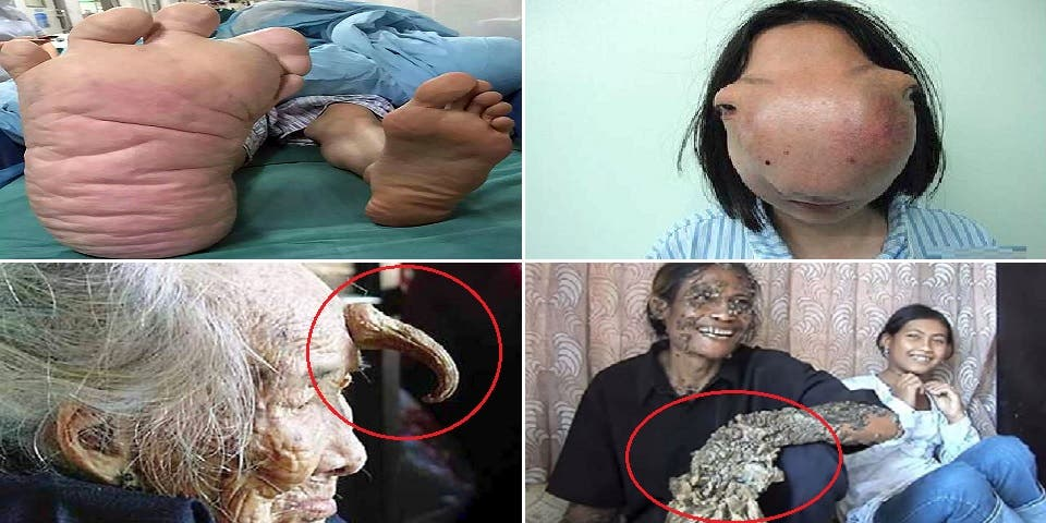 deformation du corps humain