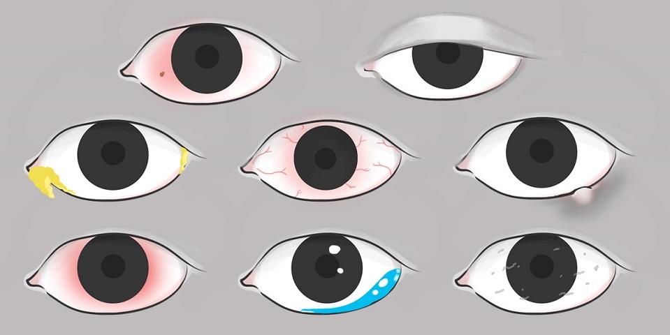 boule jaune oeil