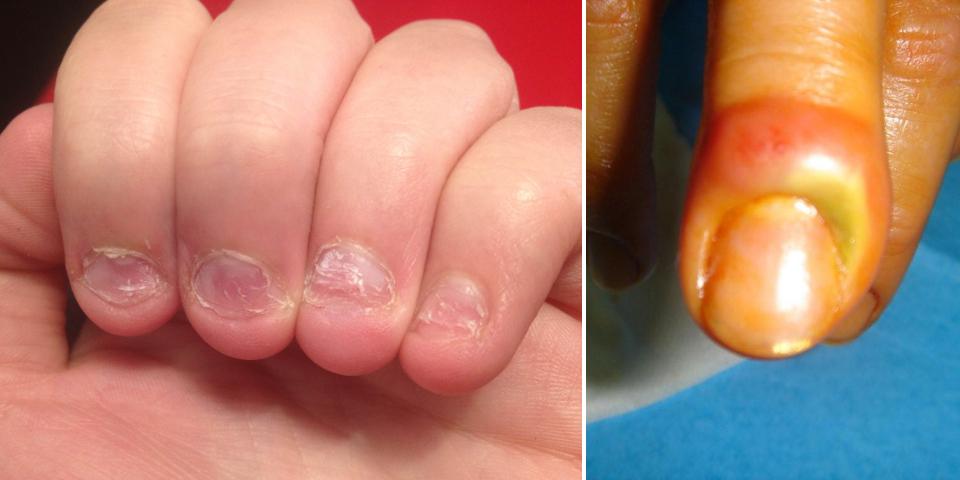 Les préparations médicinales du microorganisme végétal des ongles