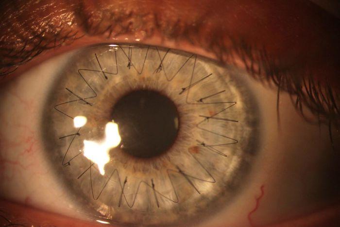 corne, oeil, operation, cornée, greffe
